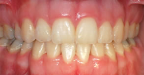 Ortodontia - Depois