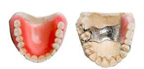 Prótese Dental