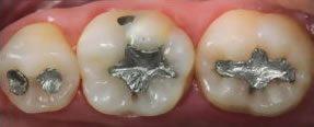 Restauracao Dentaria